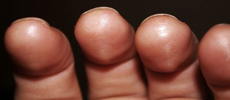 teach-yourself-guitar-tips-practice-guitar-calluses